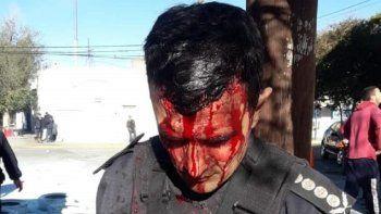 Por primera vez policías heridos en un procedimiento serán querellantes