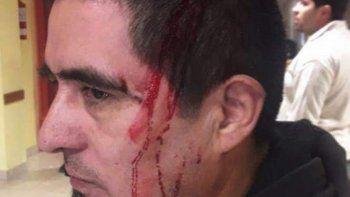 Daniel Galleguillo sufrió un corte en el cuero cabelludo y debieron practicarle cinco puntos de sutura.