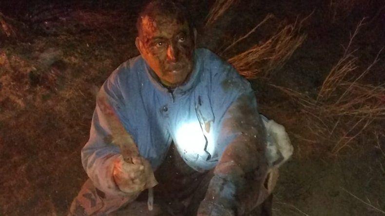 Peleó cuerpo a cuerpo con un puma para defender a su perro