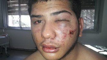 Cristhoper Bordon fue brutalmente golpeado en la madrugada del 19 de mayo en Nexo Disco. La Fiscalía imputó a tres patovicas del boliche por lesiones graves.