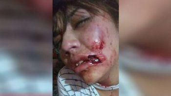 le arranco parte del rostro a su novia y el fiscal podria calificar el ataque como lesiones leves