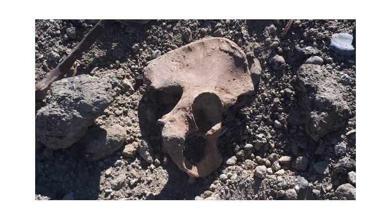 Parte de los restos óseos encontrados ayer en la playa de Km 5.