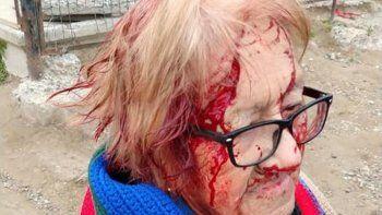 la abuela atacada por sus perros sufrio lesiones en la cabeza, brazos y piernas