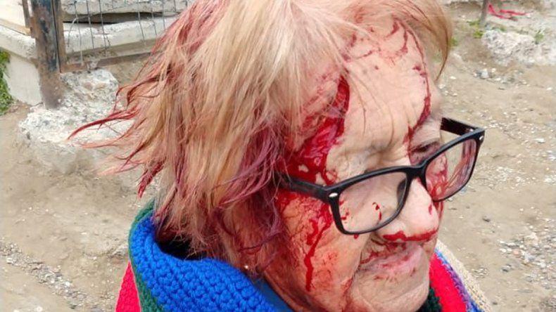 La Policía llegó justo en el momento de la agresión de los perros a la anciana y pudieron salvarla.