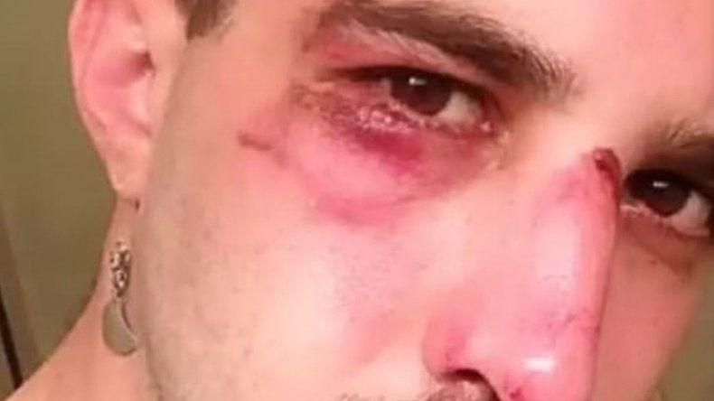 Brutal ataque homofóbico a un periodista oriundo de Chubut