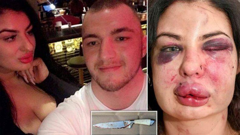 Desfiguró a golpes a su novia y casi la mata luego de tomarla de rehén