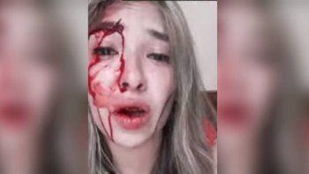 Recibió una golpiza brutal de parte de su novio porque quería mudarse