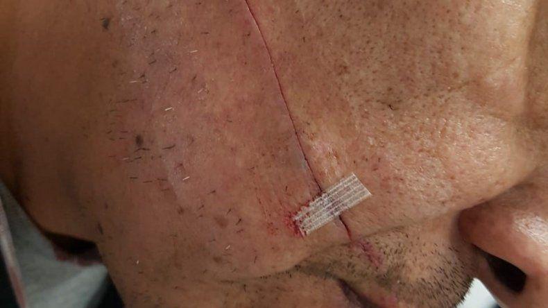 Una mujer le cortó la cara a un policía con un cúter