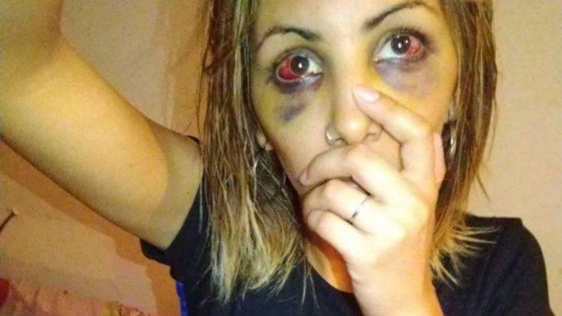 Su expareja la desfiguró a piñas y después la amenazó con matarla