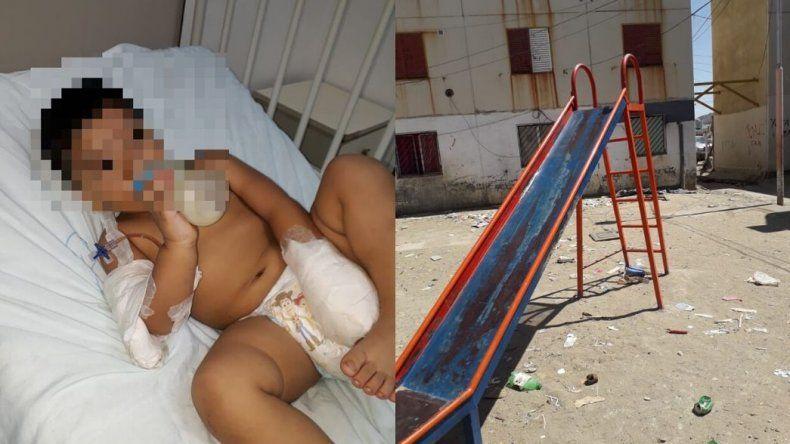 Nene de dos años perdió un dedo en un tobogán en las 1.008