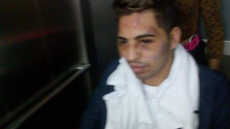Dieron de baja a los dos soldados que atacaron a un joven en manada