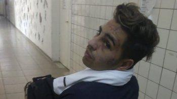 Luciano Gianonne se recupera en el Hospital Regional luego de la violenta golpiza que recibió a la salida de un boliche.