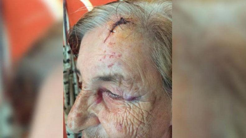 Una pareja de abuelos vive aterrorizada por los golpes de su nieto