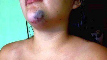 la joven atacada en un boliche fue golpeada por un hombre de 44 anos